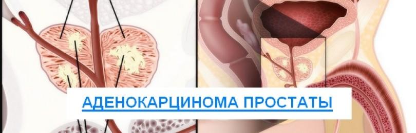 Что такое аденокарцинома предстательной железы: прогноз жизни и способы лечения