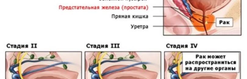 Лапароскопия раковой опухоли предстательной