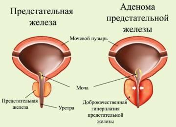 Симптомы простатита и аденомы простаты у мужчин