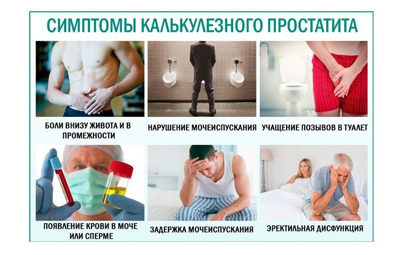 Калькулезном простатите лечение признаки простатита у парней